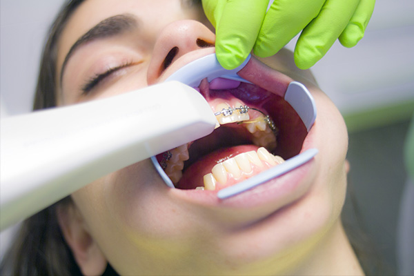 ortodoncia dental niños